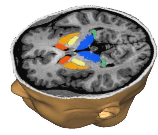 Атрофическая деменция (альцгеймеровский тип)