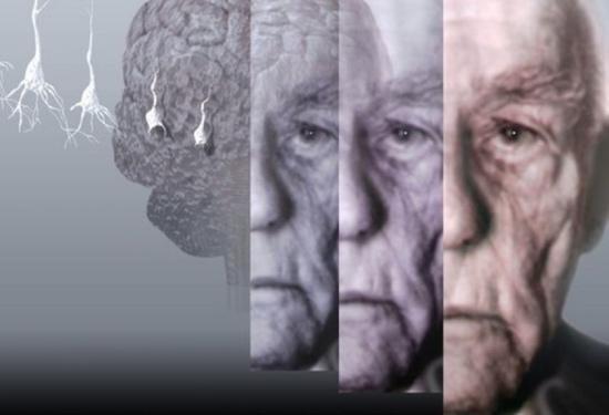 Сосудистая деменция: сколько живут с таким диагнозом?
