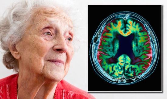 Чем опасна старческая деменция?