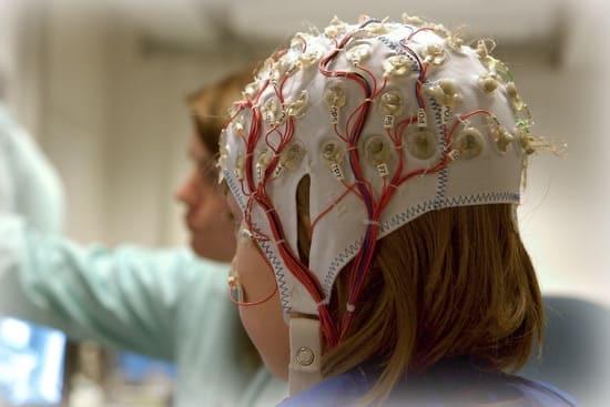 Диагностика эпилепсии на ЭЭГ