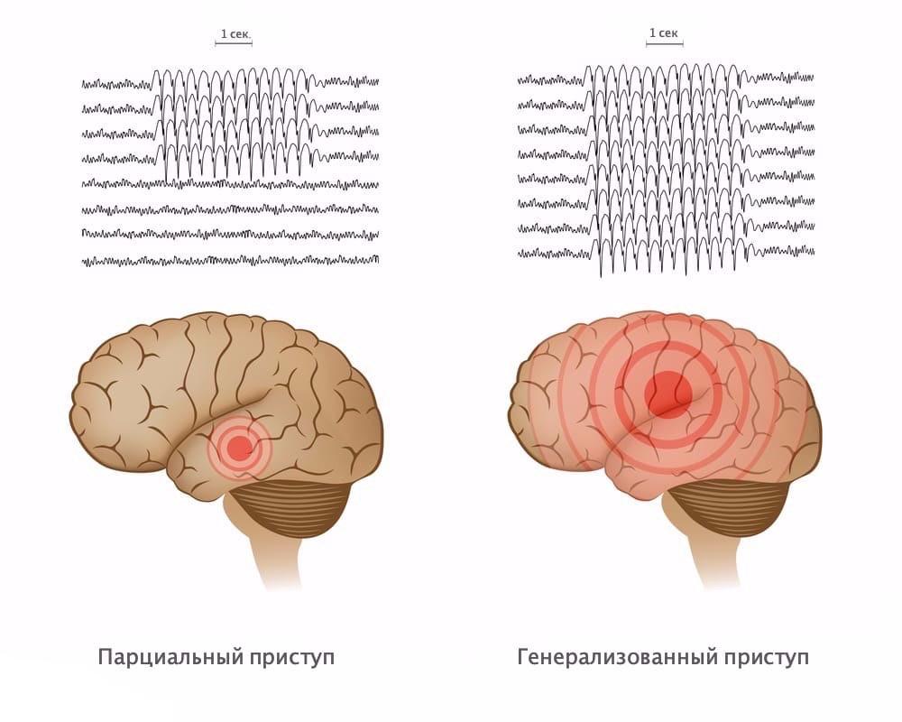 Припадки эпилепсии