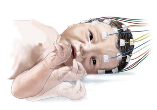 Эпиприступ у новорожденного