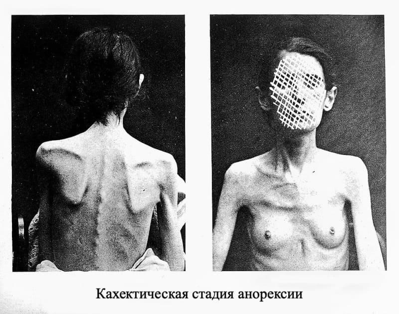 Кахектическая анорексии
