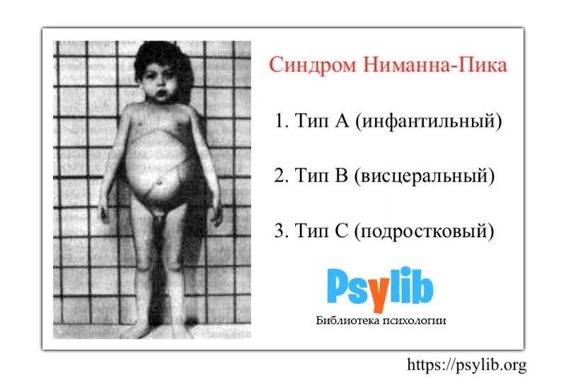 Синдром Ниманна-Пика