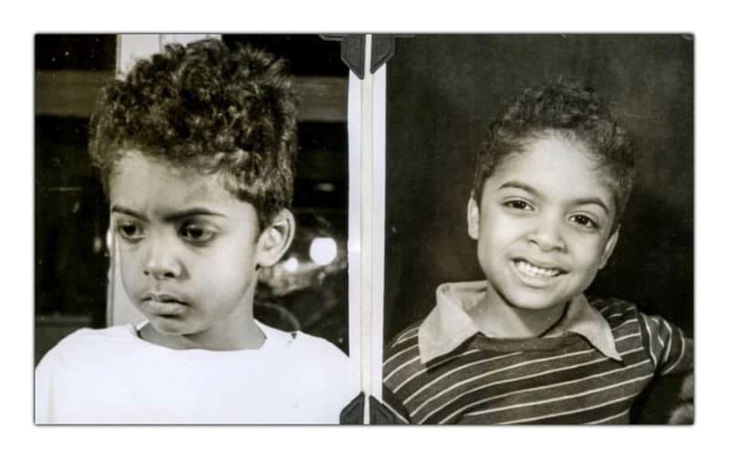 Мальчик до и после лоботомии