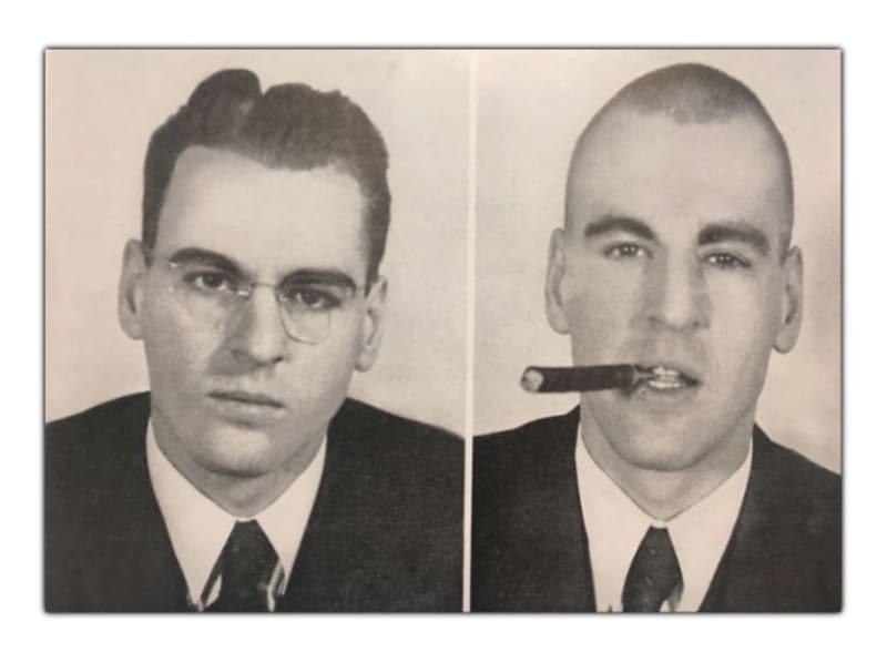 Лоботомия фото до и после