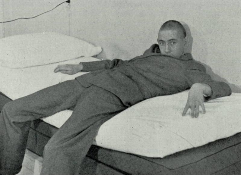 Пациент после лоботомии