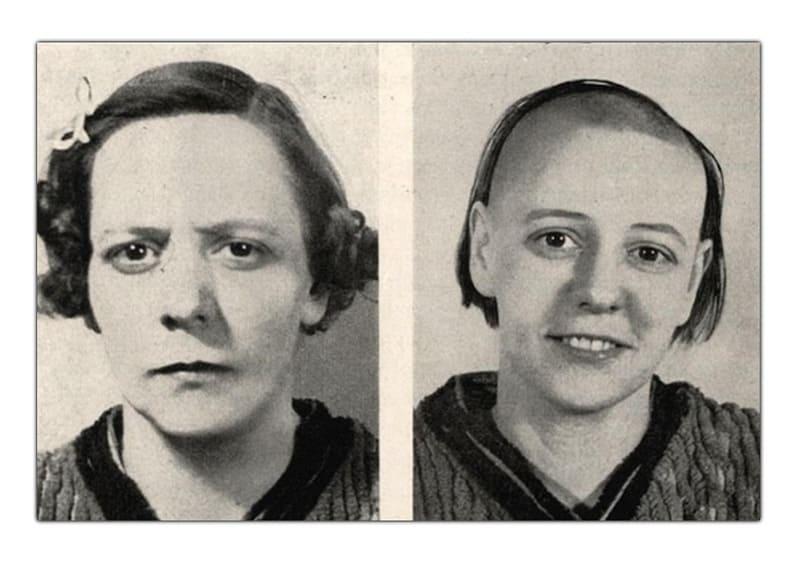 До и после лоботомии