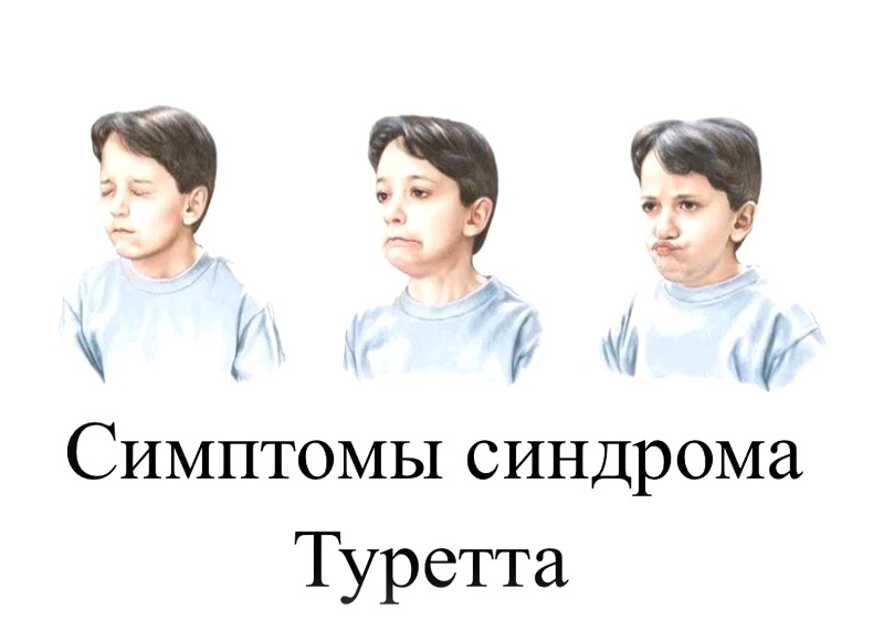 Симптомы синдрома Туретта