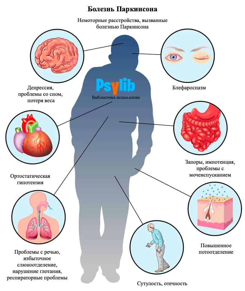 Болезнь Паркинсона: признаки