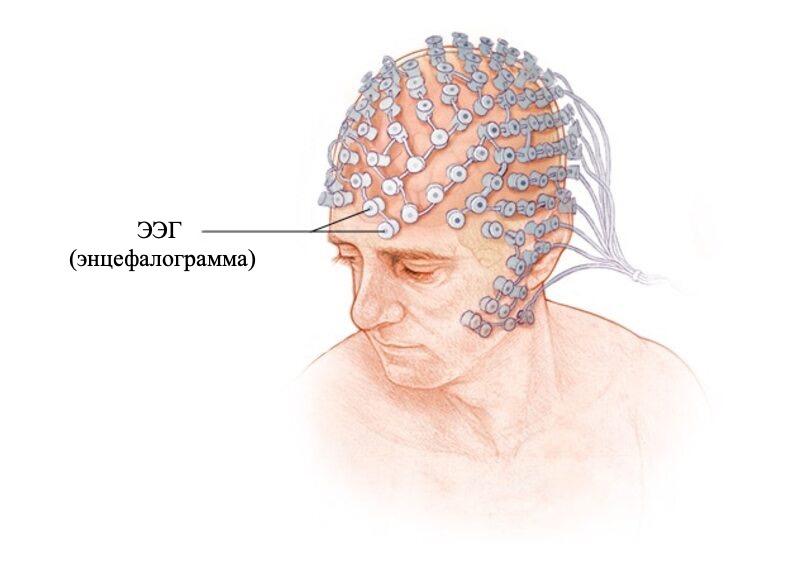 Энцефалограмма