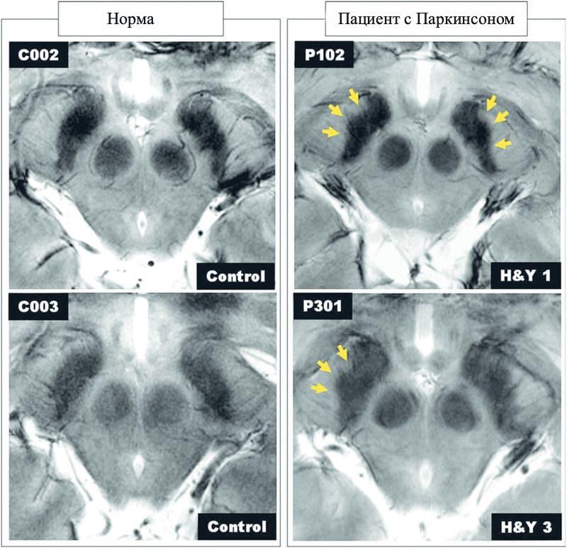 МРТ при Паркинсоне фото